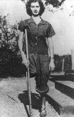 1084-03 1930s Amputee Girl (jackcast2015) Tags: handicapped disabledwoman crippledwoman crutches amputee sakamputee sakamputation sak