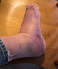 injured ankle 5-17-18 (photo synth) Tags: ankle sprainedankle swelling bruised footinjury falling sprained