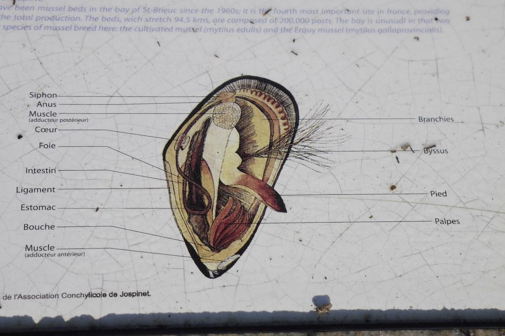 Wunderbar Lungenarterien Anatomie Galerie - Anatomie Von ...