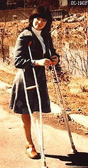 1960s SAK on cructhes (jackcast2015) Tags: handicapped disabledwoman crippledwoman crutches amputee sakamputee sakamputation sak