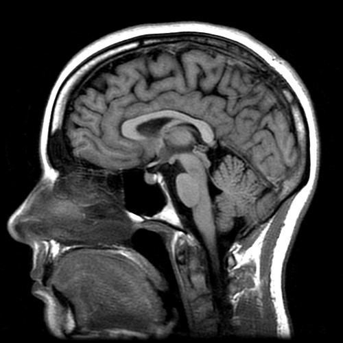 mri brain scan. MRI brain scan.