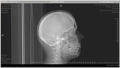 Carolyn - medical - CT scan - 20060824 - serie...