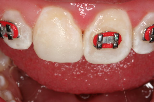Cracked tooth bonded