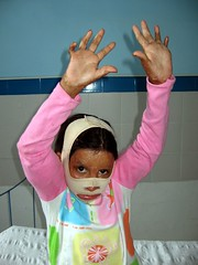 Burn Victim Tiano After Surgery (ReSurge International) Tags: charity peru girl burn plasticsurgery ngo npo interplast